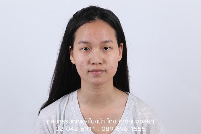 รีวิวศัลยกรรมตาสองชั้น ให้ชั้นตาดูหวาน สวย คม มากขึ้น